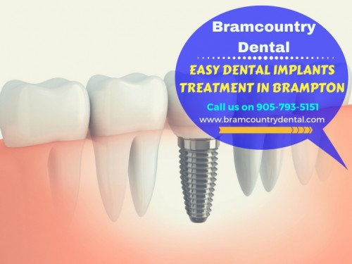 Best-Dental-Implants-Bramalea-RD2359c1097a35a725.jpg