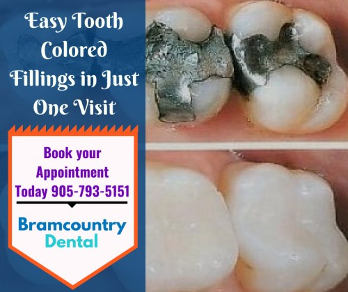 Tooth-Colored-Fillings-in-Bramptoncef964a98dc3fa1b.jpg