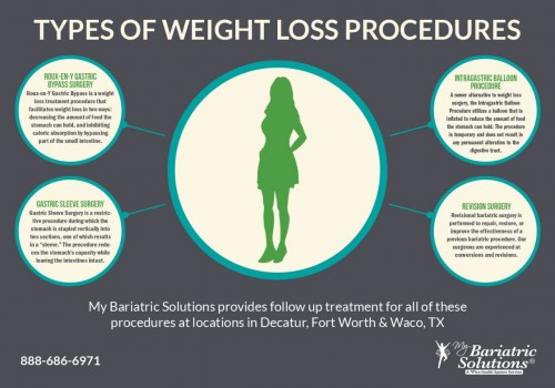 Types-of-Weight-Loss-Procedures-Infographic28972512aacb3ff2.jpg