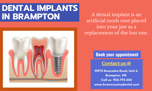 Dental-Implants-Treatment9affb217b70f9163.png