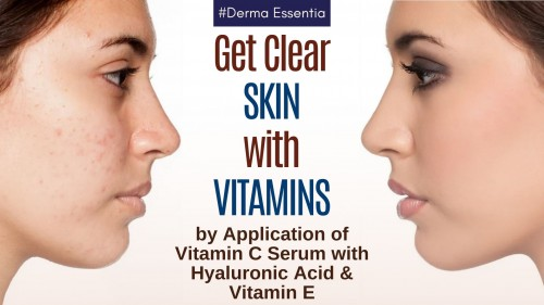 We all admire to get beautiful, clear skin naturally but we end up in chemical cosmetics. Whats your skin need? It Need natural vitamins to get clear skin. Your skin needs it to be healthier and healthy skin means younger and brighter. Let's get in this article on the benefits of the direct application of Vitamins like Vitamin C with Hyaluronic Acid. to get Best Vitamin C Serum visit www.dermaessentia.com #NaturalSkin #Vitamin #Vitamins #VitaminC #VitaminE #SkinCare #BeautyTip