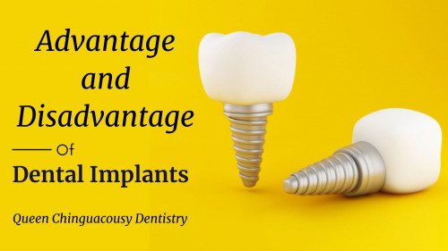 A dental implant is a fake tooth root that is placed and attached to your jaw to fill that place with a lost tooth. It means if you have accidentally lost your tooth, then you can get a new one with the help of a dental implant. It comes with many advantages and disadvantages, so in this article get to know some of the Advantage and Disadvantage of Dental Implants: https://bit.ly/3ny0sET #DentalImplants #HealthCare #Teeth #DentalCare