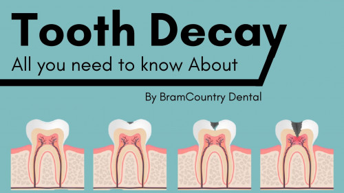 tooth-decay-causes-and-treatment129a2158e68e71b8.jpg