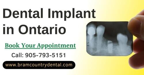 dental-implant-in-bramptonacabb5a030af4fa4.jpg